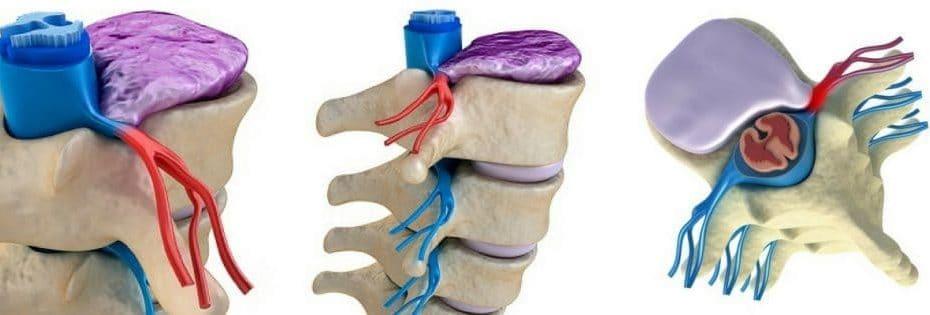 hernia discal y el mejor tratamiento