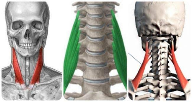 músculos involucrados en la tortícolis