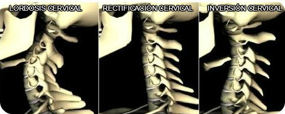 rectificacion cervical y inversion cervical