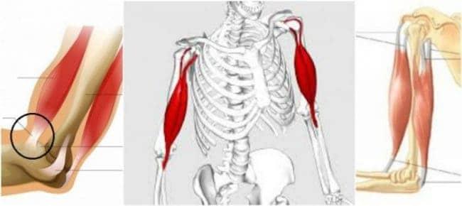 tendinitis del bíceps braquial